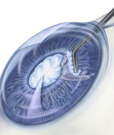 Illustration of instrument being used during eye surgery