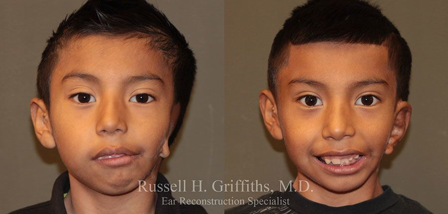 Before and After:  One stage microtia ear surgery on boy with severe hemifacial microsomia