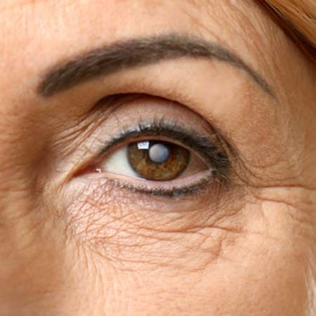 woman with glaucoma