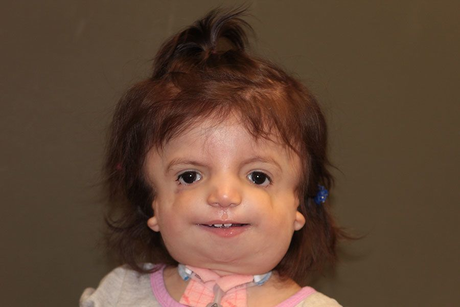 Young girl with Treacher Collins syndrome and Bilateral Microtia atresia