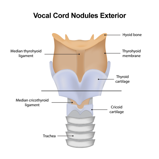 Illustration of exterior vocal cord nodules.