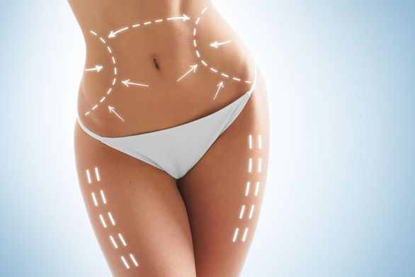 Photo of woman with lines over body to show contouring