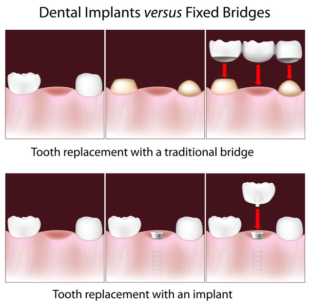 Illustration comparing dental implants and dental bridges