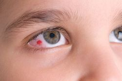 Boy with Red Spot on Eye