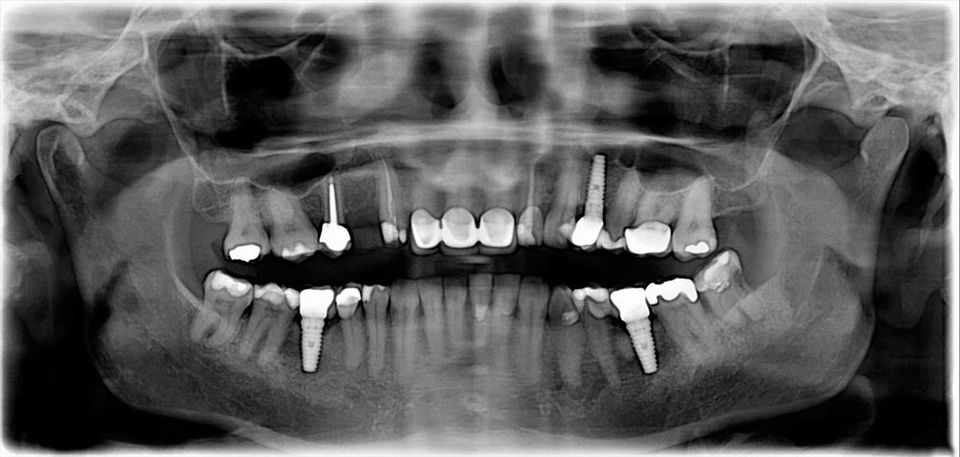 X-ray of a patient's mouth with a dental implant