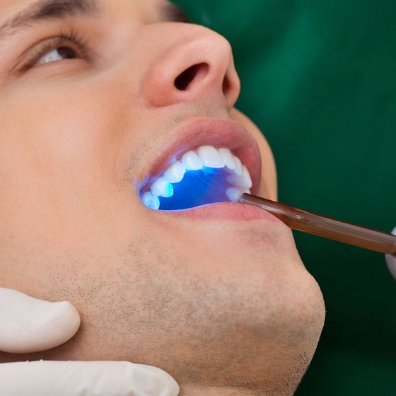 Man undergoing an oral cancer screening with a blue light