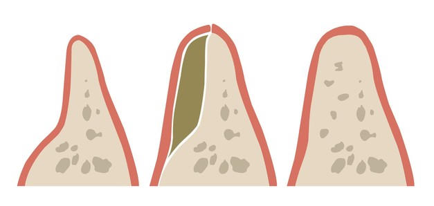 Illustration of a bone grafting procedure