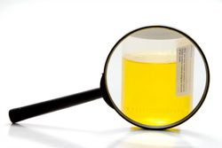 Magnifying glass sitting in front of a urine sample.