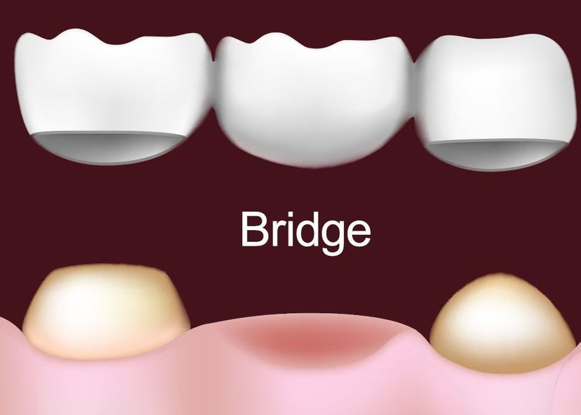 Illustration of traditional dental bridge being placed