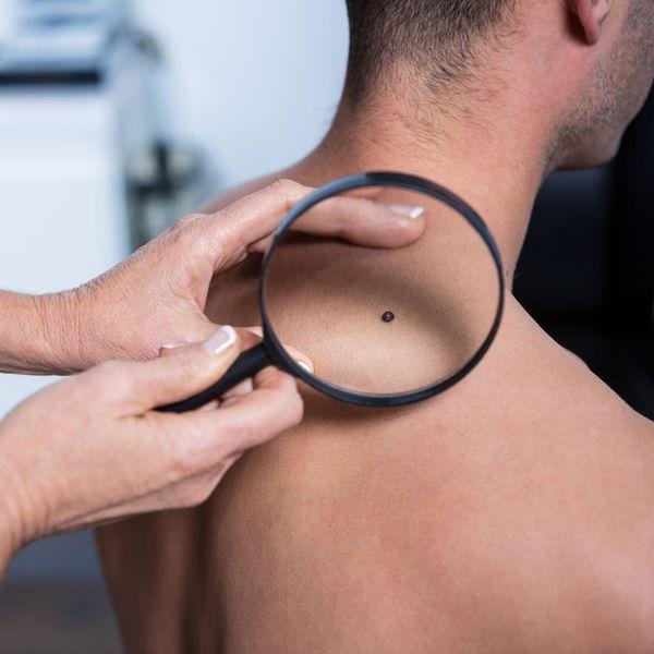 Man having mole examined
