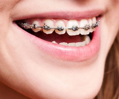 A woman with braces smiling