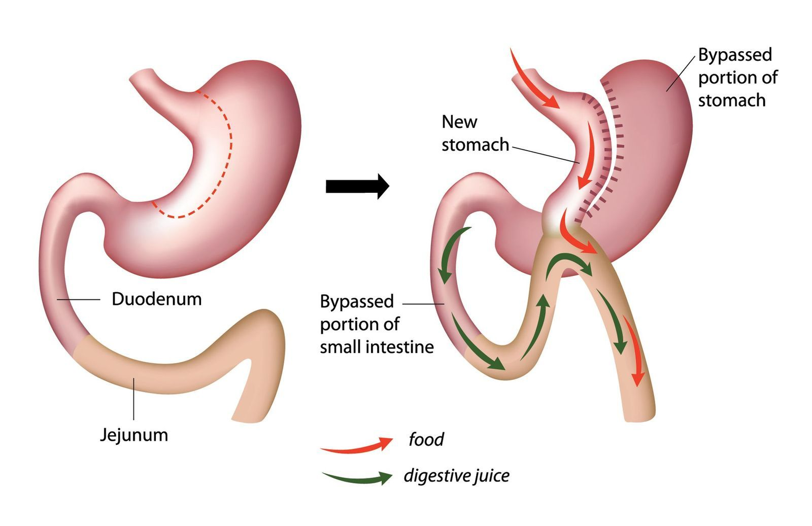 stomach before and after a mini gastric bypass