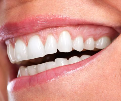 A closeup of the teeth and gums in a smile