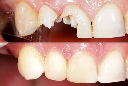 Before and after of an inlay/onlay patient