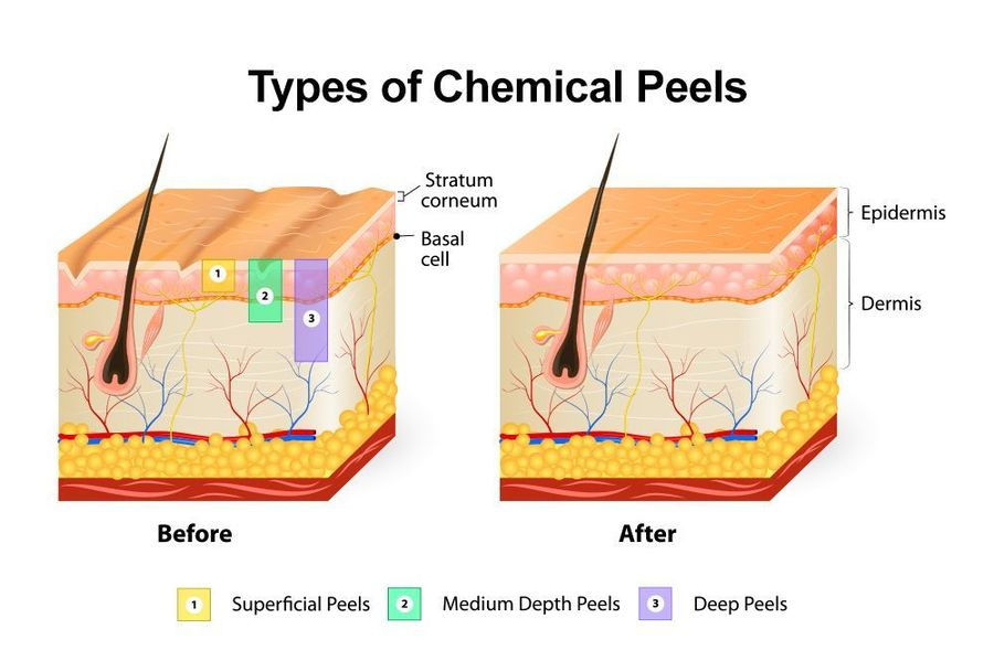 Illustration of the different depths of chemical peels