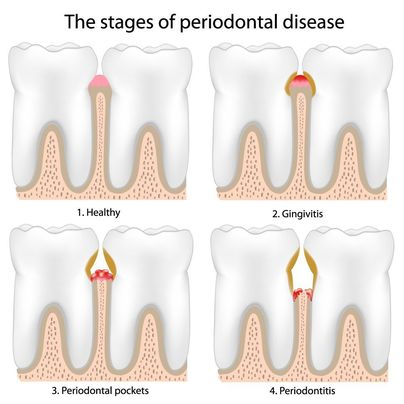 Illustration showing stages of periodontal disease