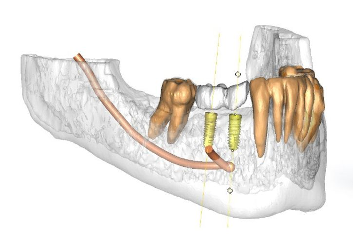 3-D image of jaw and treatment planning guide