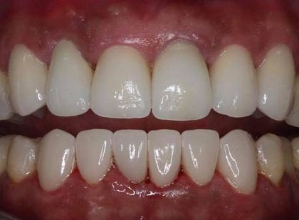 After porcelain veneers treatment.