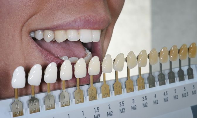 Dentist using a shade guide on a patient's teeth