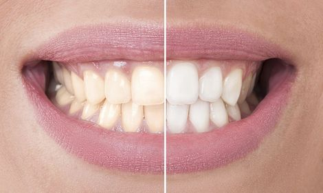 Before and after of a teeth whitening patient