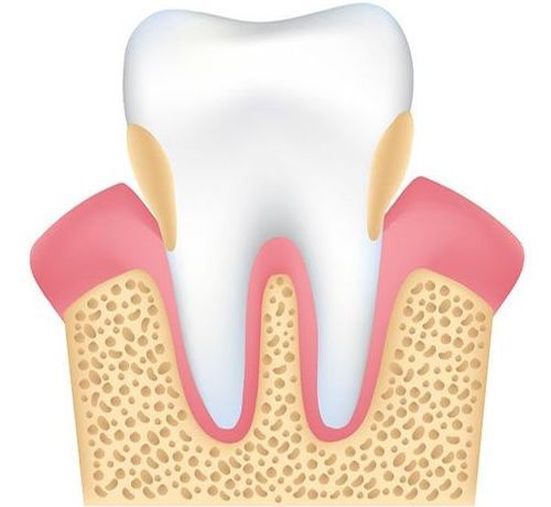 Illustration of tooth and bone