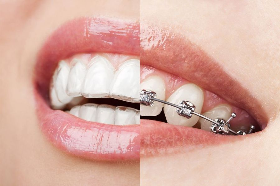 A split image showing the difference between Invisalign and traditional metal braces.