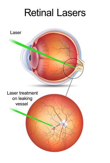 Illustration of laser treatment on a leaking blood vessel.