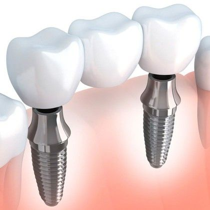 Illustration of an implant bridge