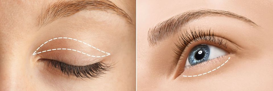 A photo illustrating what areas a lower and upper eyelid surgery can correct