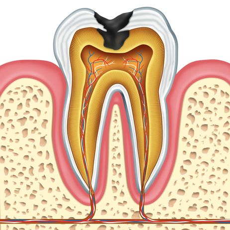Illustration of a cross-section of a tooth with decay and the surrounding structures