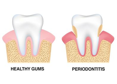Digital illustration comparing healthy gums to periodontitis