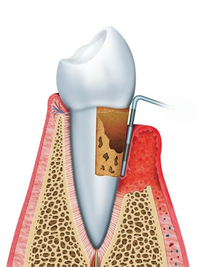 Illustration depicting gum disease