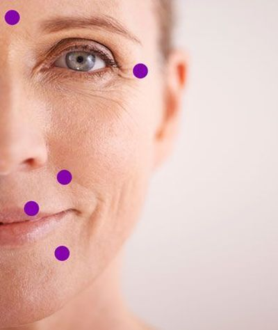 Photo of woman's face showing cosmetic injection locations