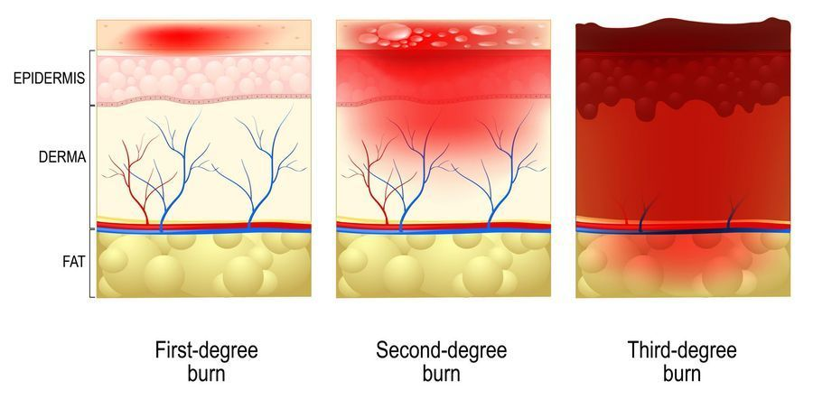 Illustration demonstrating the extent of first-, second-, and third-degree burns.