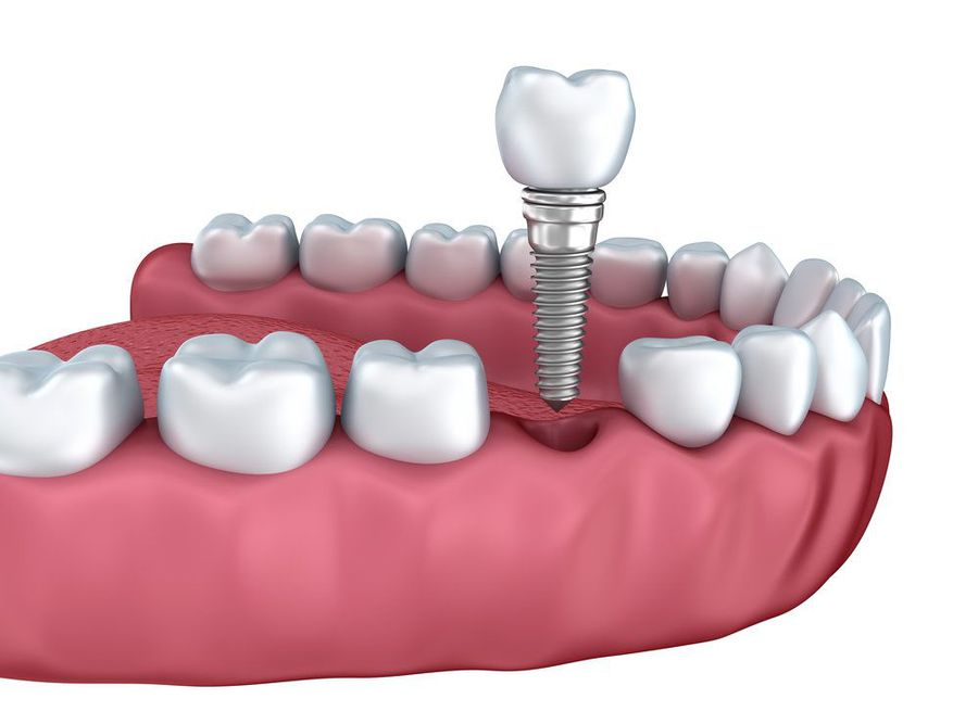 Illustration of dental implant and crown
