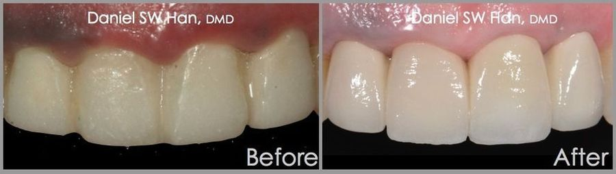 Two sets of before and after smiles, with implant supported bridges and crowns