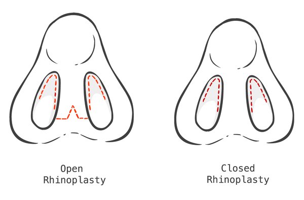 Open vs. closed rhinoplasty.