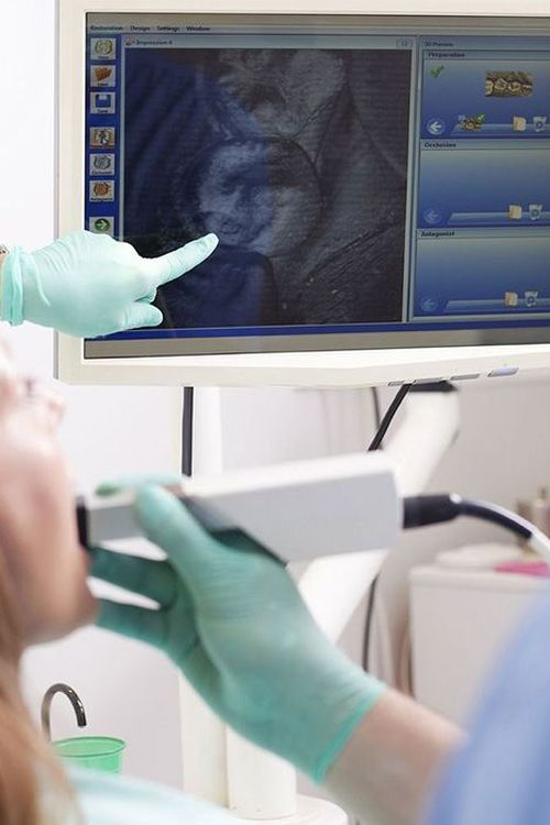 Dentist using intraoral camera and pointing to screen
