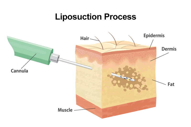Illustration of the liposuction process.