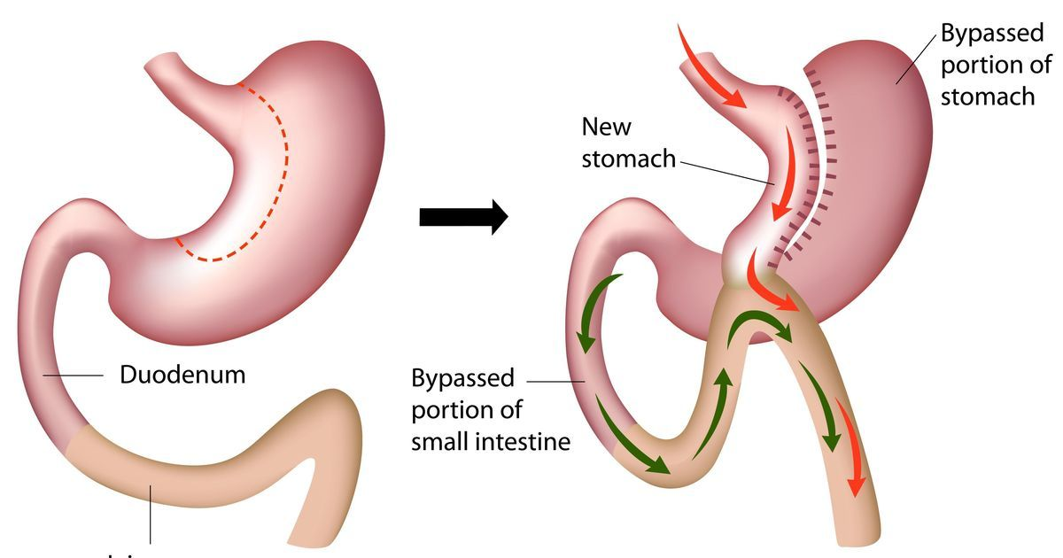 Low Cost Mini Gastric Bypass Surgery Medical Tourism In Tijuana