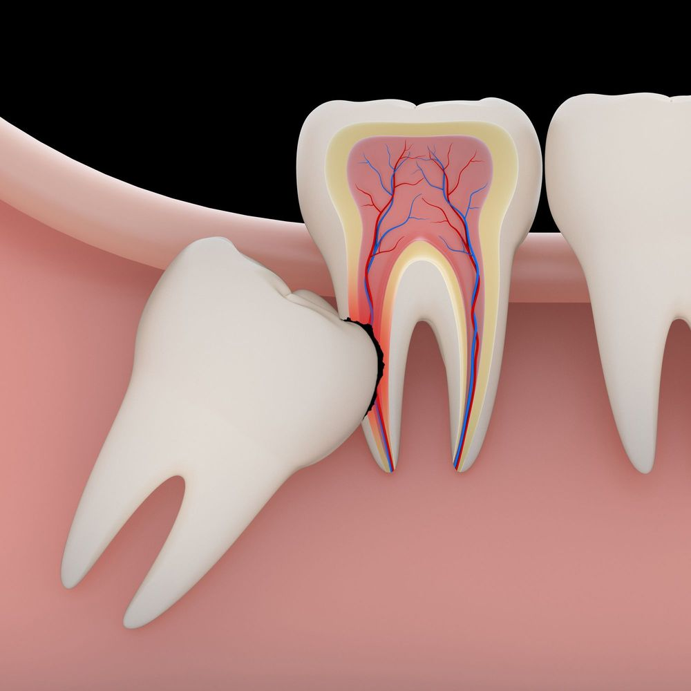 Wisdom Teeth Removal Scottsdale Az Phoenix Az Dental Works
