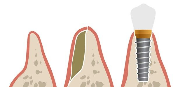An illustration of a bone graft