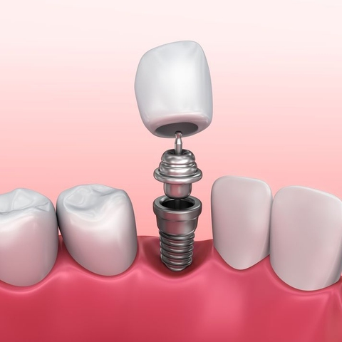 Illustration of how a crown, abutment, and implant post fit together.