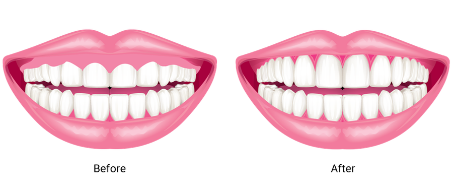 A before and after illustration showing the effects of gum contouring