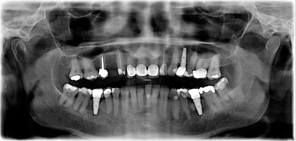 X-ray of the jaw showing dental implants