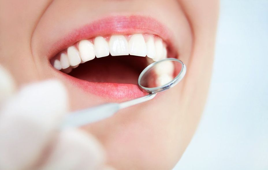 image of a healthy smile