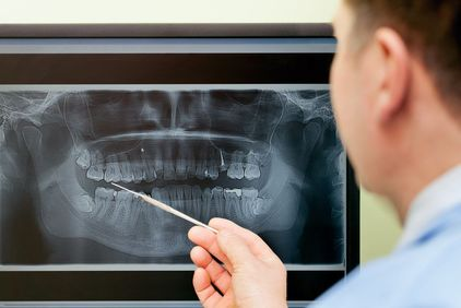 Dentist pointing to dental x-ray
