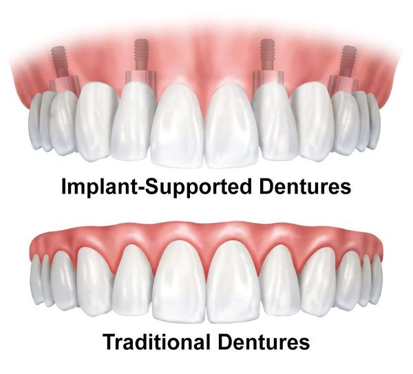 Illustration of traditional and implant-supported dentures.