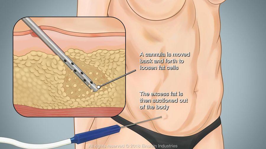 Liposuction Pittsburgh Pa Dr Dennis Hurwitz Md