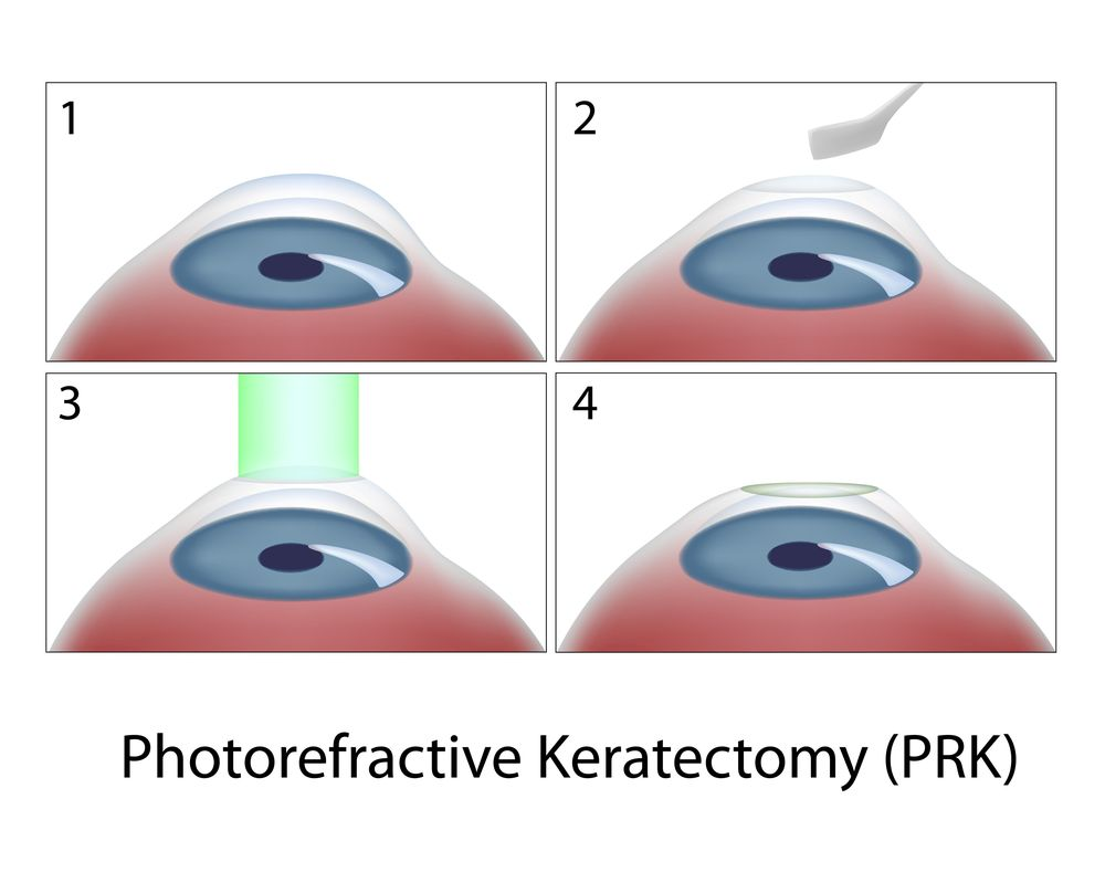 Illustration of PRK surgery (photorefractive keratectomy).